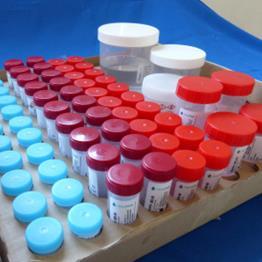 HistoFor 2500 ml